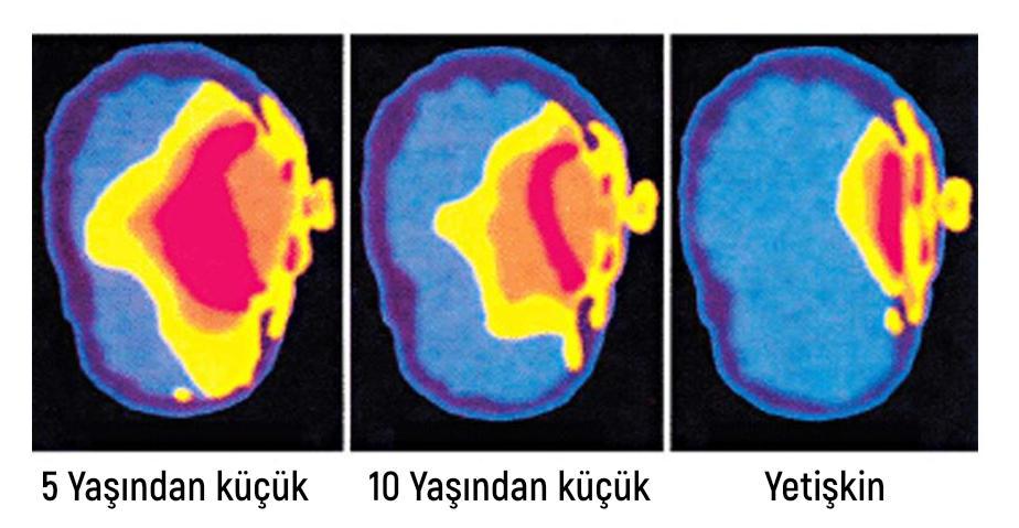 beynin-emr-dalgalarini-emmesi